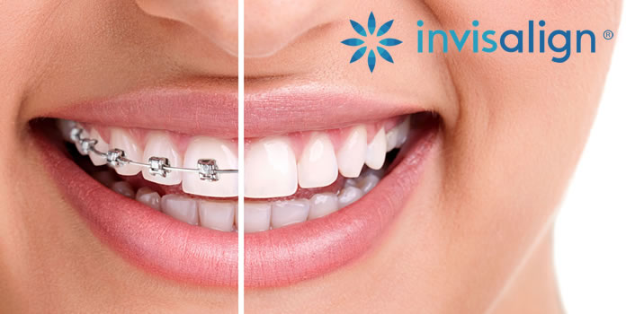 invisalign Whitby, Ajax, Pickering, Durham
