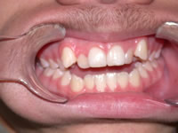 orthodontic treatment before